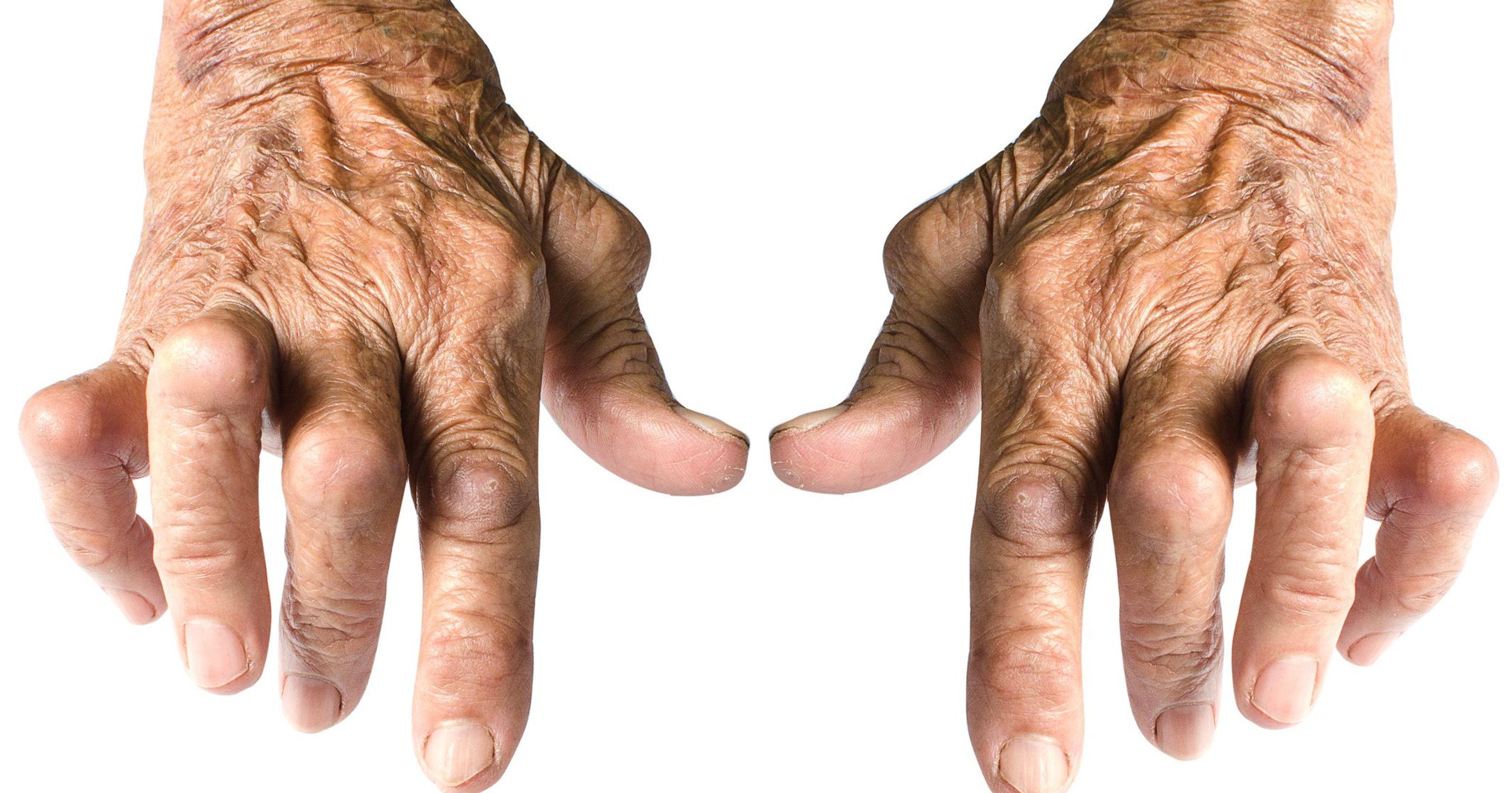Triệu chứng viêm khớp dạng thấp 1
