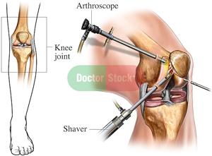 Phẫu thuật 1
