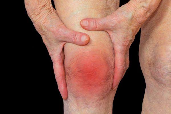 Nguyên nhân, triệu chứng và cách điều trị viêm khớp gối 1