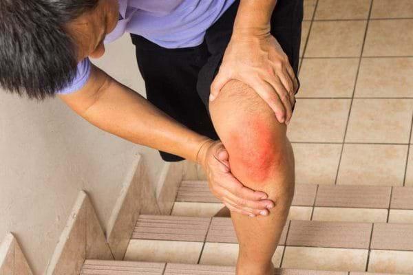 Viêm khớp gối gây nên nhiều biến chứng nguy hiểm
