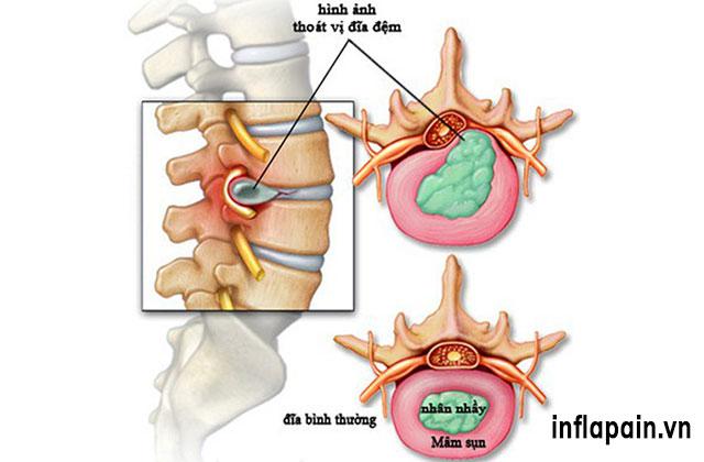 Một số bệnh lý về khớp thường gặp 1