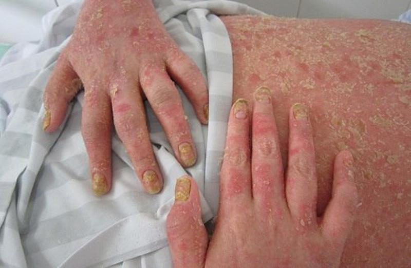 5 loại bệnh xương khớp phổ biến nhất hiện nay 1