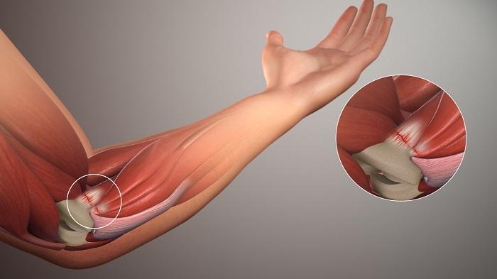 Nguyên nhân thường gặp gây đau cánh tay