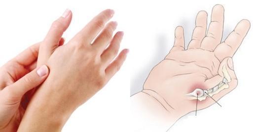 Tổng quan về viêm khớp ngón tay cái 1