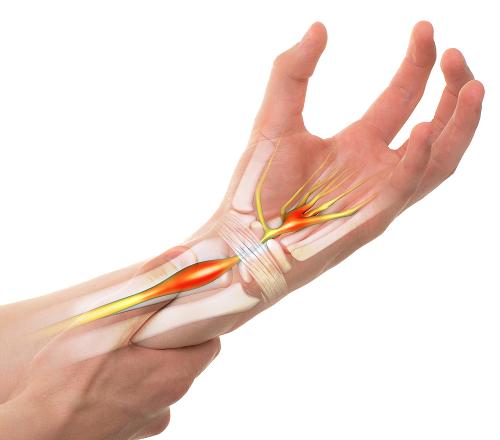 Các cách điều trị viêm khớp cổ tay phổ biến 1
