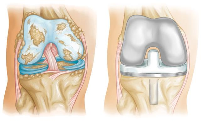 Tổng quan về phẫu thuật thay khớp gối 1
