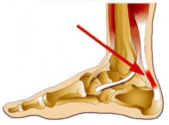 Viêm điểm bám gân sưng phù ở gân gót chân