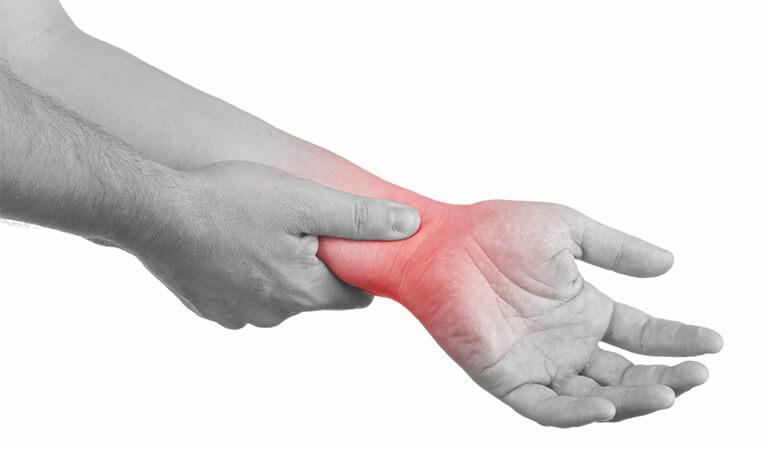Bệnh viêm khớp cổ tay là gì? 1