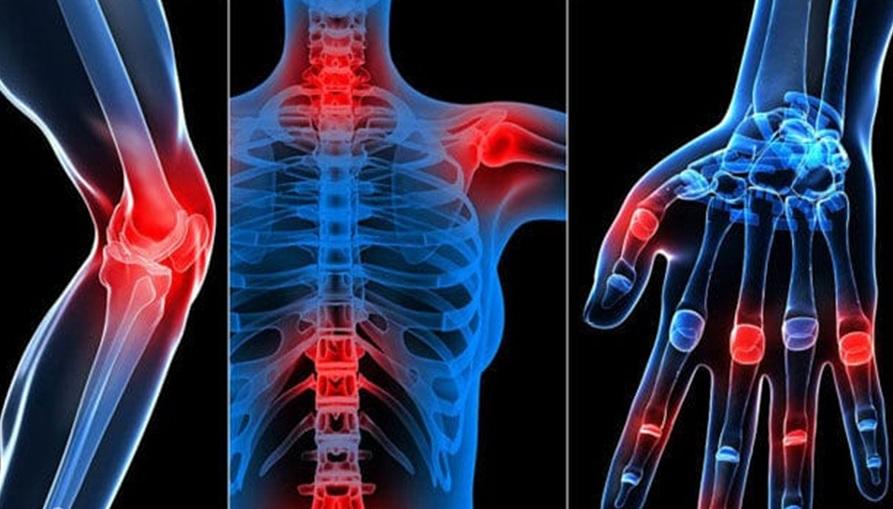 Một số triệu chứng điển hình của bệnh viêm đa khớp 1