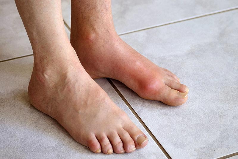 Bệnh Gout làm đau khớp gối và khớp ngón tay, ngón chân