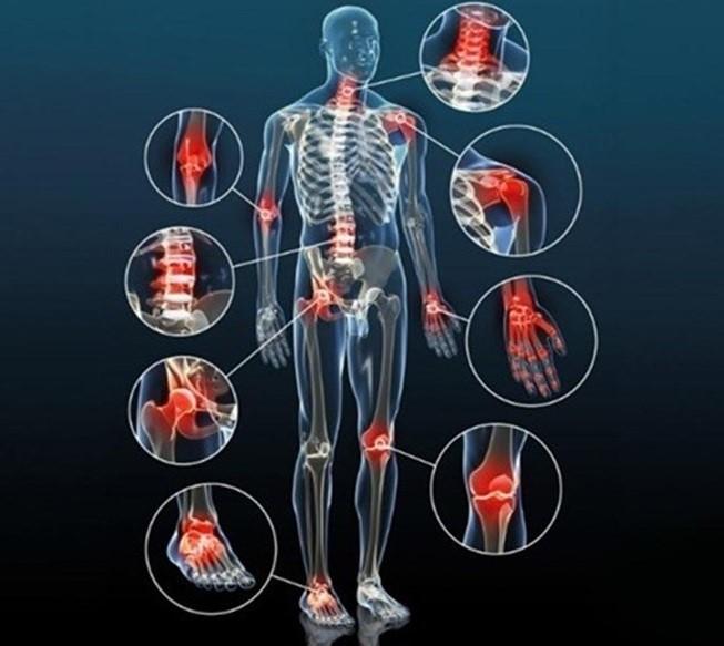 Viêm đa khớp gây ảnh hưởng nhiều đến khả năng vận động các khớp