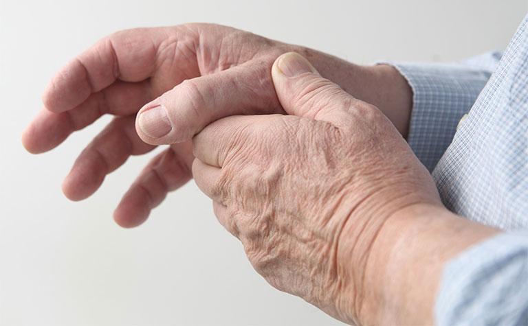 Triệu chứng viêm khớp ngón tay 1