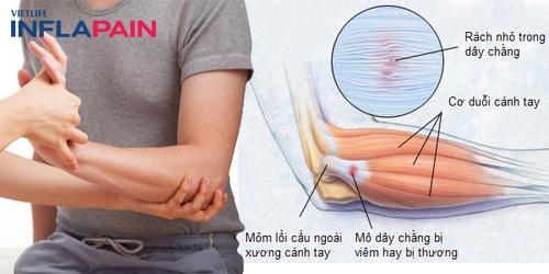 Nguyên nhân bệnh viêm lồi cầu ngoài xương cánh tay 1