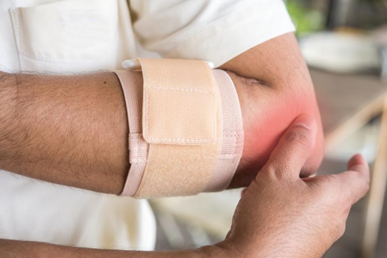 Viêm lồi cầu ngoài xương cánh tay là bệnh gì? 1