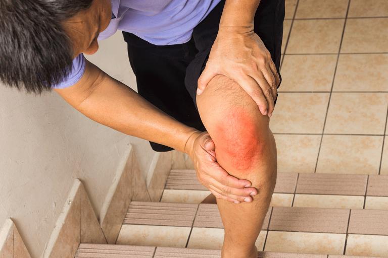 Viêm màng bao hoạt dịch khớp gối - căn bệnh gây khó khăn trong sinh hoạt