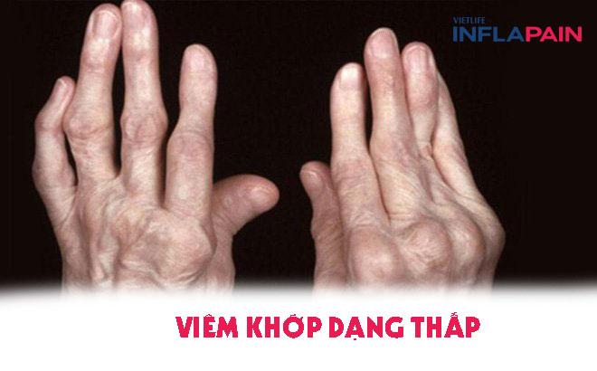Khớp tay bị biến chứng khi viêm khớp dạng thấp