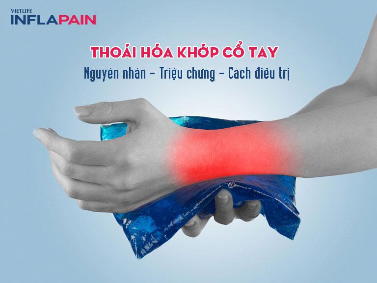 Thoái hóa khớp cổ tay - bệnh nhiều phụ nữ mắc phải