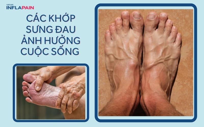 Các khớp sưng đau ảnh hưởng đến sinh hoạt hằng ngày
